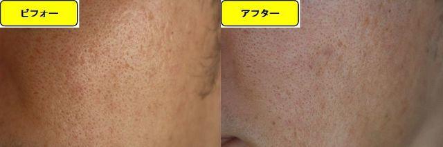 毛穴の開きとニキビ跡の治療であるケミカルピーリング治療前の顔の右側の写真と第2回目治療1か月後の顔の右側の写真
