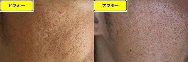 毛穴の開きとニキビ跡の治療であるケミカルピーリング治療前の顔の左側の写真と第2回目治療1か月後の顔の左側の写真
