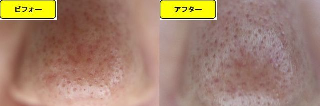 毛穴の開きとニキビ跡の治療であるケミカルピーリング治療前の鼻の写真と第2回目治療1か月後の鼻の写真