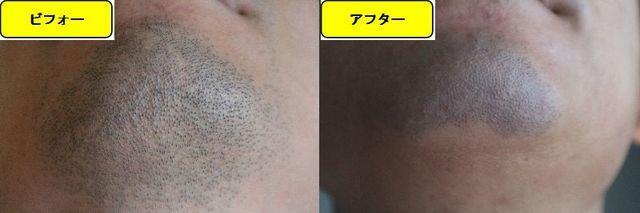 ヒゲ脱毛施術前の顎下の写真とゴリラクリニックでヒゲ脱毛した第15回目照射1日後の顎下の写真の比較画像