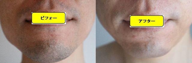 ヒゲ脱毛施術前の顔の正面側の写真とゴリラクリニックでヒゲ脱毛した第15回目照射1日後の顔の正面側の写真の比較画像