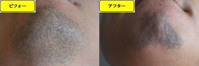 ヒゲ脱毛施術前の顎下の写真とゴリラクリニックでヒゲ脱毛した第15回目照射1週間後の顎下の写真の比較画像