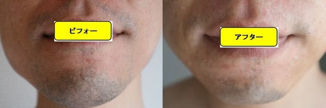 ヒゲ脱毛施術前の顔の正面側の写真とゴリラクリニックでヒゲ脱毛した第15回目照射1週間後の顔の正面側の写真の比較画像