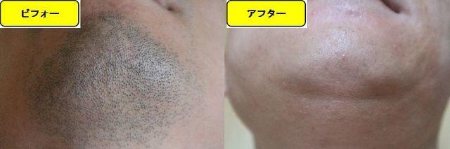 ヒゲ脱毛施術前の顎下の写真とゴリラクリニックでヒゲ脱毛した第15回目照射1ヵ月後の顎下の写真の比較画像