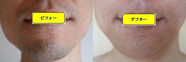 ヒゲ脱毛施術前の顔の正面側の写真とゴリラクリニックでヒゲ脱毛した第15回目照射1ヵ月後の顔の正面側の写真の比較画像
