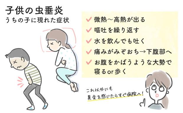 子供の急性虫垂炎で体に現れた症状
