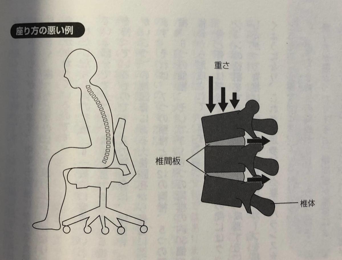 座り方の悪い例