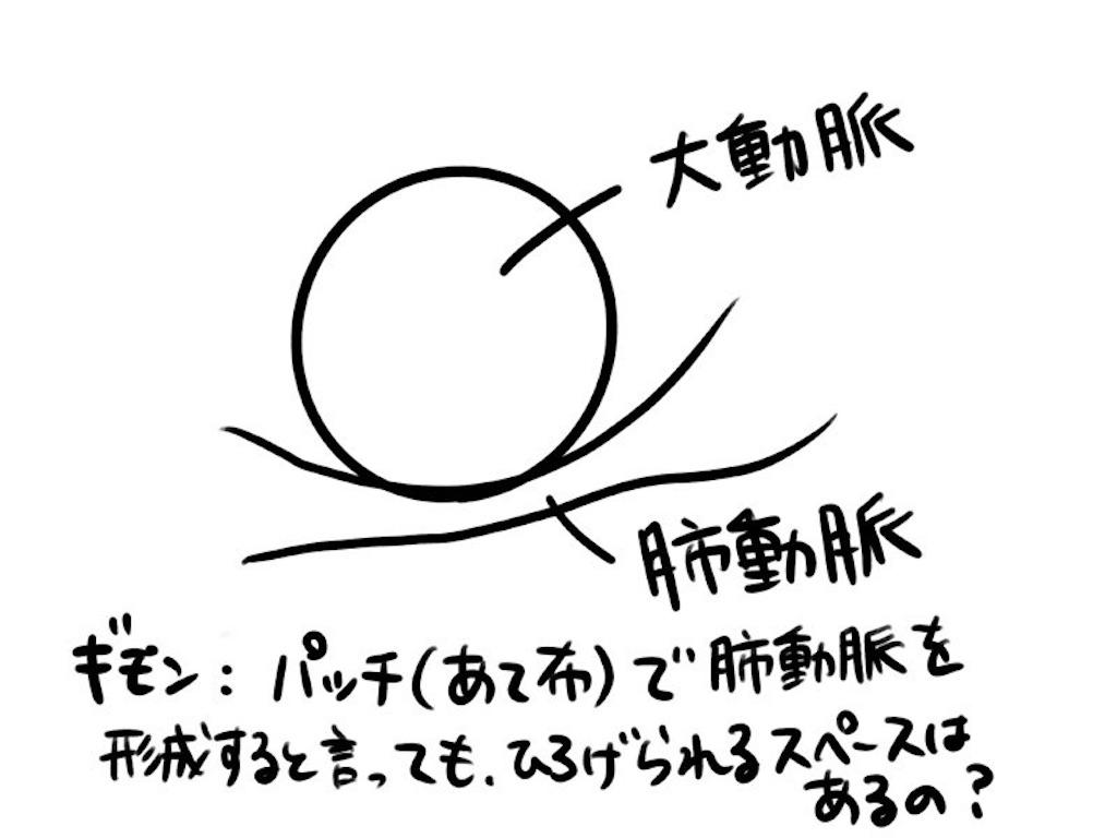 f:id:CALMIN:20200309232826j:image