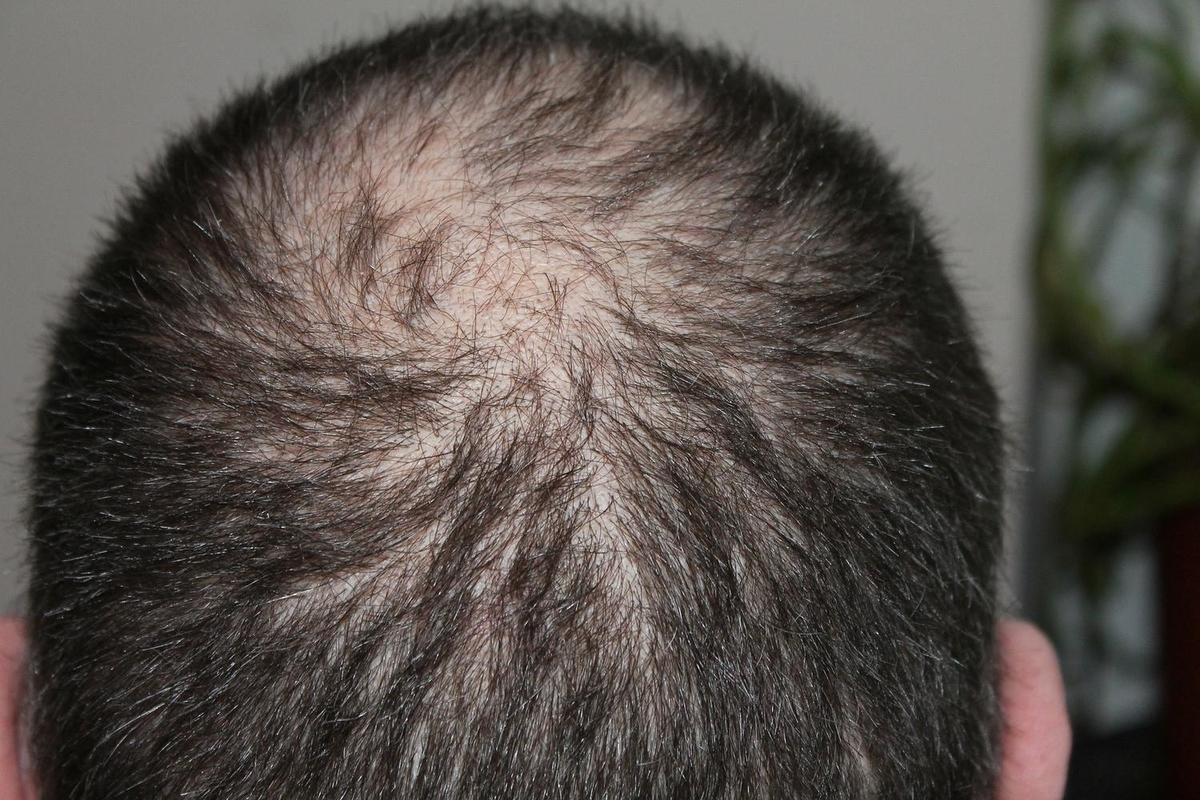 髪が全体的に薄い場合、それはAGA(男性型脱毛症)か