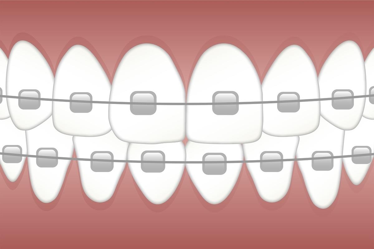 副作用なしの育毛剤の価値を歯列矯正を例にして考える