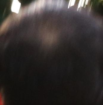 35歳になる手前の時の頭頂部の薄毛の状態