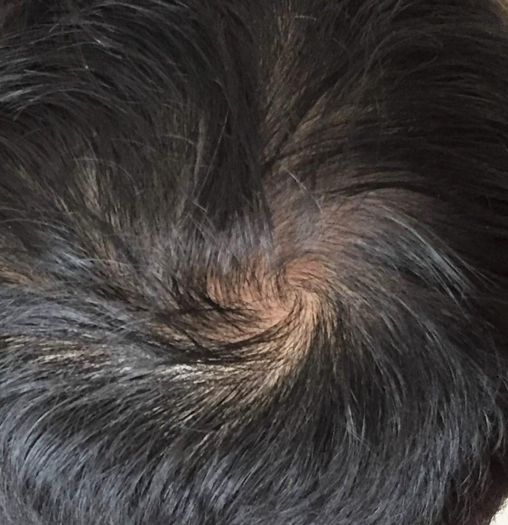 フィナステリドの服用を始めて9カ月後の頭頂部の様子