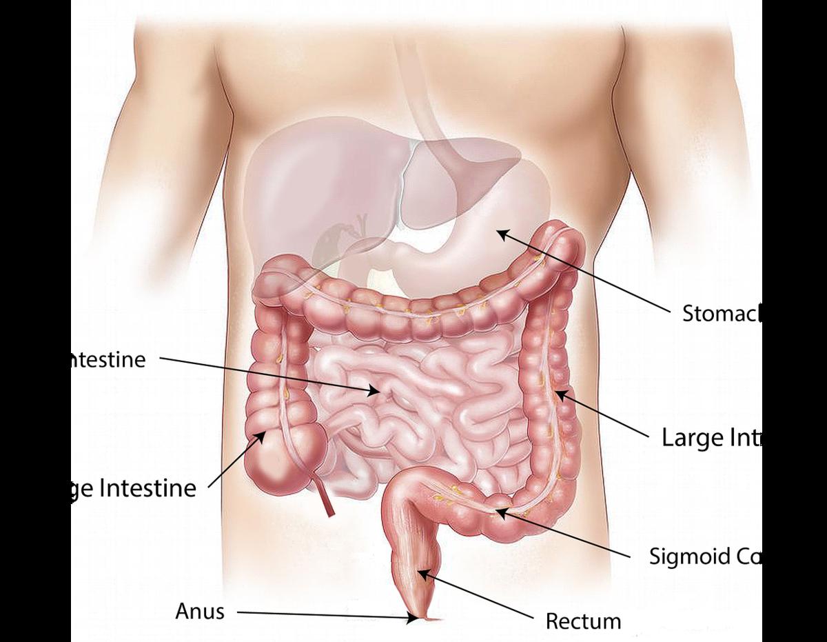 過敏性腸症候群の対処法