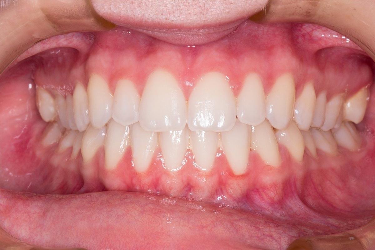 歯並びや噛み合わせは薄毛に関係するのか?