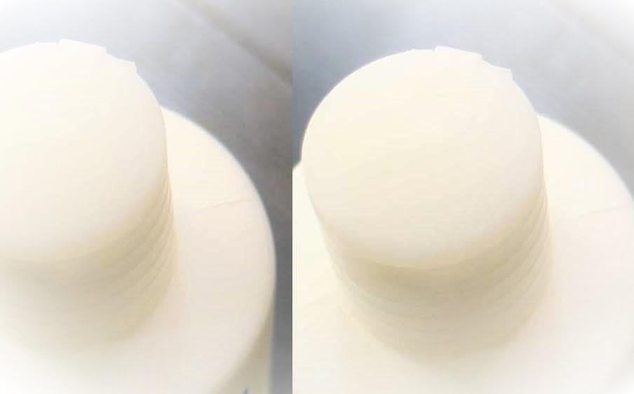 薄毛に効くのはミノキシジルとアデノシン