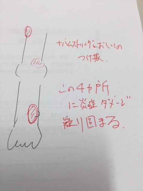 f:id:Choei:20160930181128j:plain