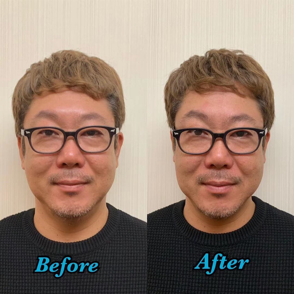 f:id:DADAtakemura:20190301124716j:image