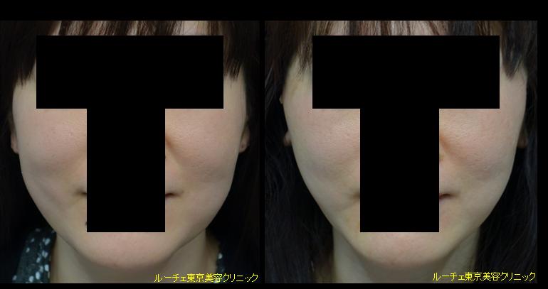 f:id:DrLUCE:20160116205222p:plain