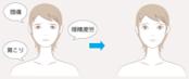 ルーチェ東京美容クリニック 眉毛下切開 頭痛肩こり改善