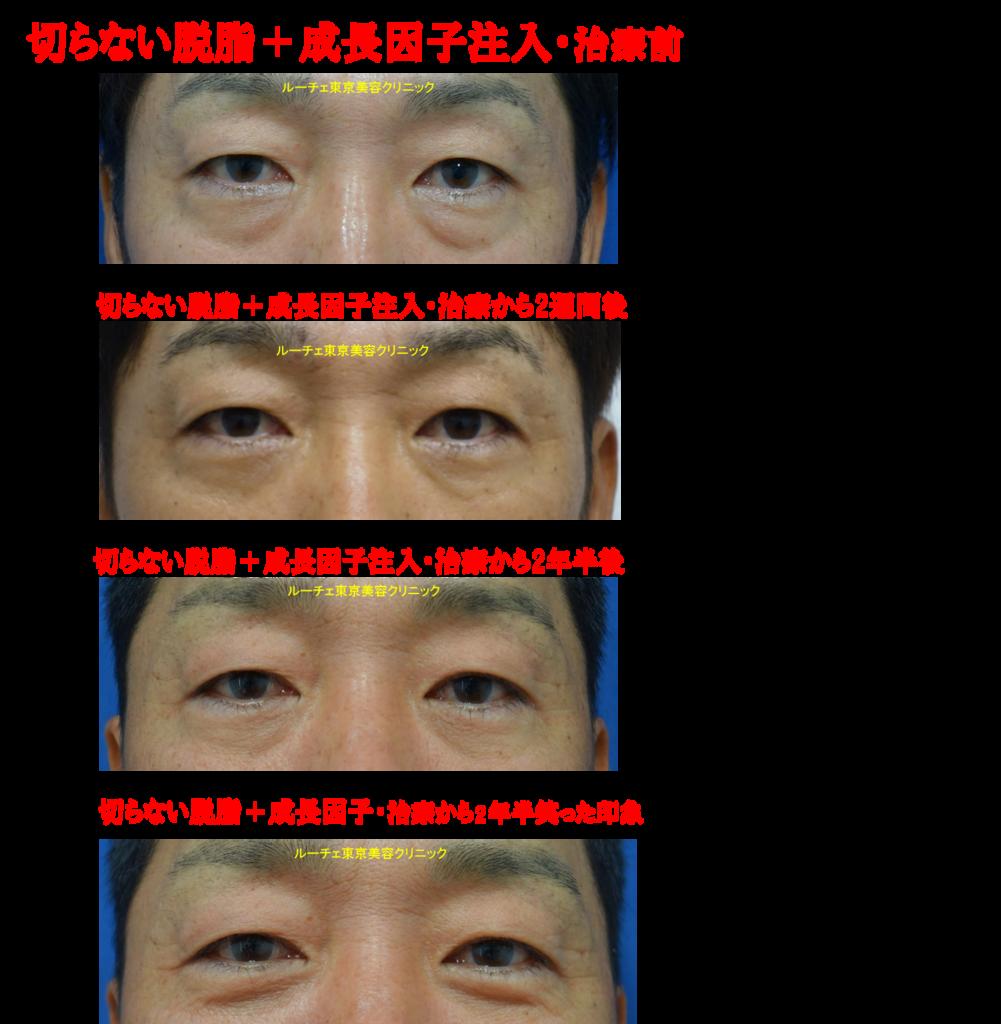 f:id:DrLUCE:20180710190043p:plain
