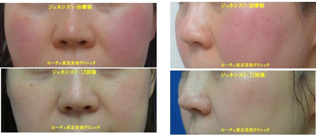 ジェネシスV・赤ら顔治療@ルーチェ東京美容クリニック
