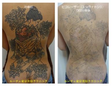 ピコレーザータトゥー除去大きいタトゥー@ルーチェ東京美容クリニック