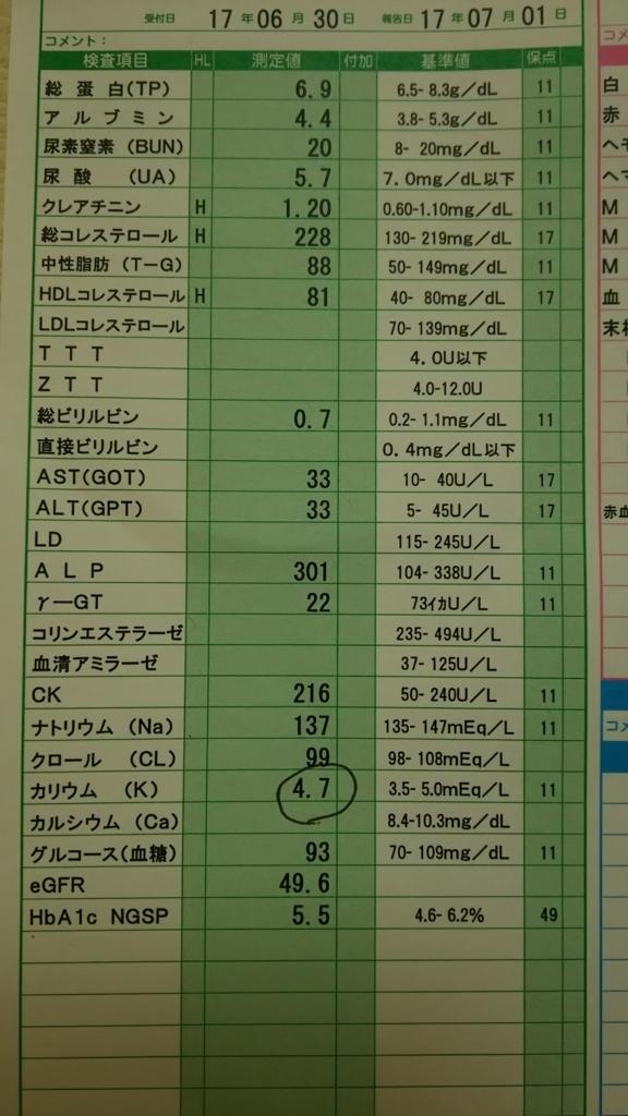 f:id:Eekomama:20170724213754j:plain