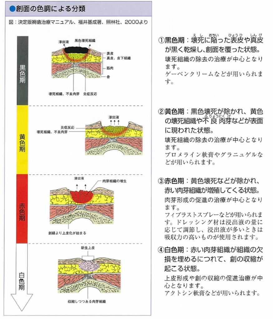 f:id:FMyakuzaishi:20180221200311j:image