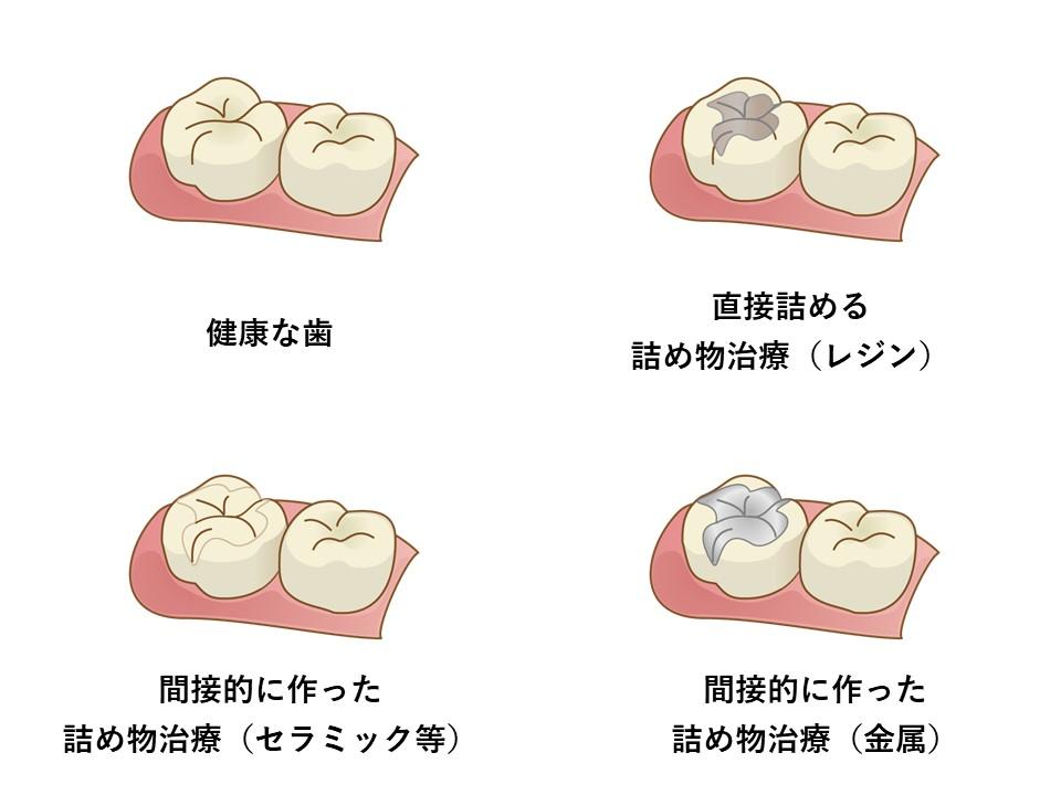 f:id:Fukumen-Dentist:20190313024342j:plain
