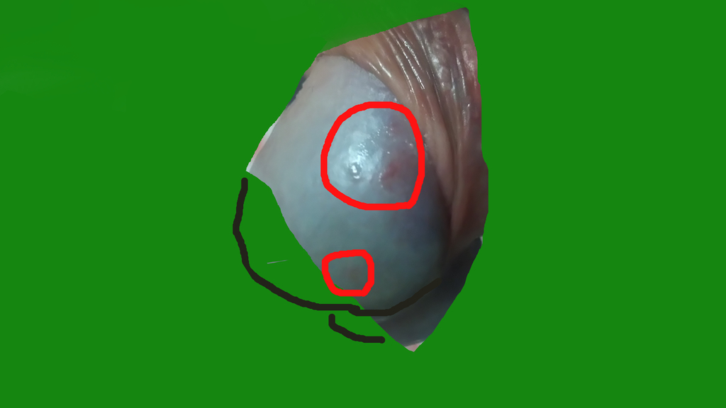 亀頭包皮炎になったから次は皮膚...