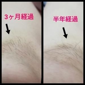 打撲痕から生えた毛の成長