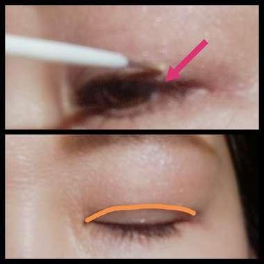 人工被膜を瞼に塗布