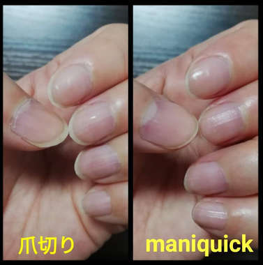 電動爪切り使用前後