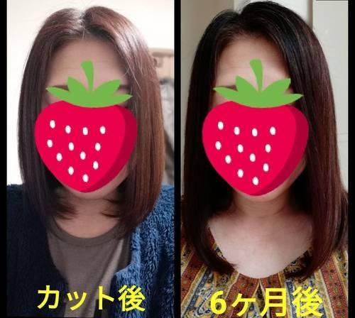髪の伸び方比較