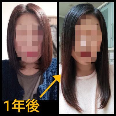 髪が1年で伸びる長さ前からの比較