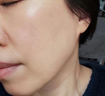 デルメッドプレミアム UVベイスを塗った肌