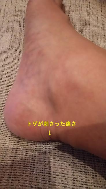 f:id:Hidechi:20180804115927j:plain