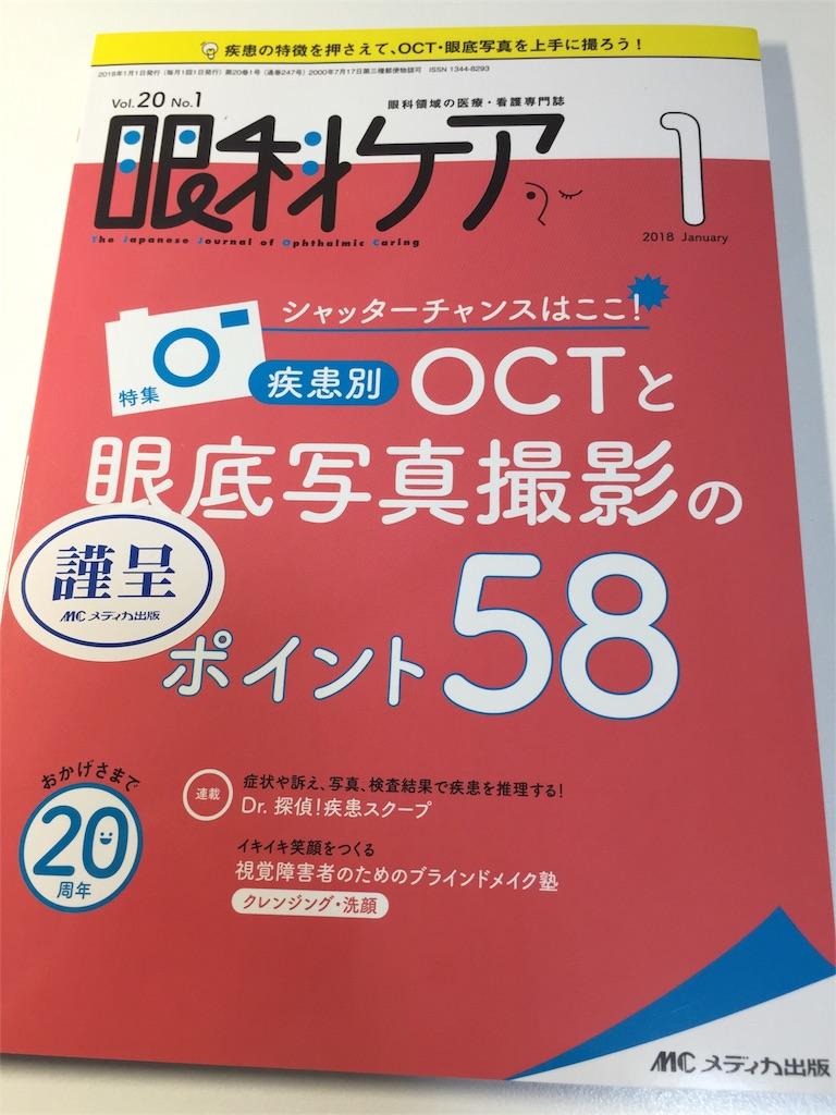 f:id:HiroakiKato:20180116182834j:image