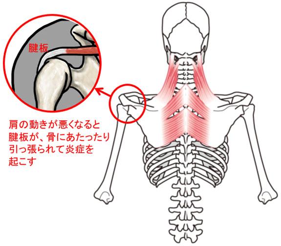 肩関節痛のイラスト