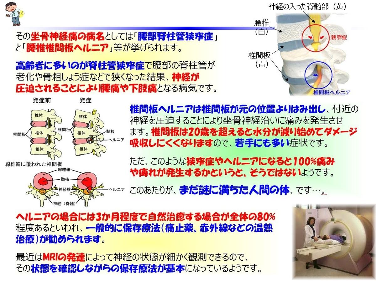f:id:IchiroStories:20210718095203j:plain