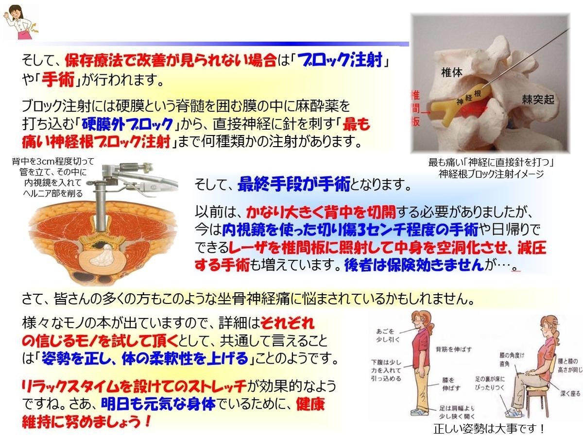 f:id:IchiroStories:20210718095208j:plain