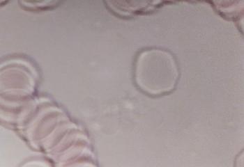真菌/酵母などが増え、ドロドロに