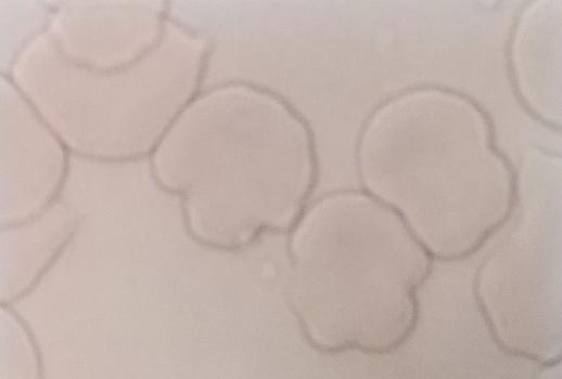 赤血球の変形