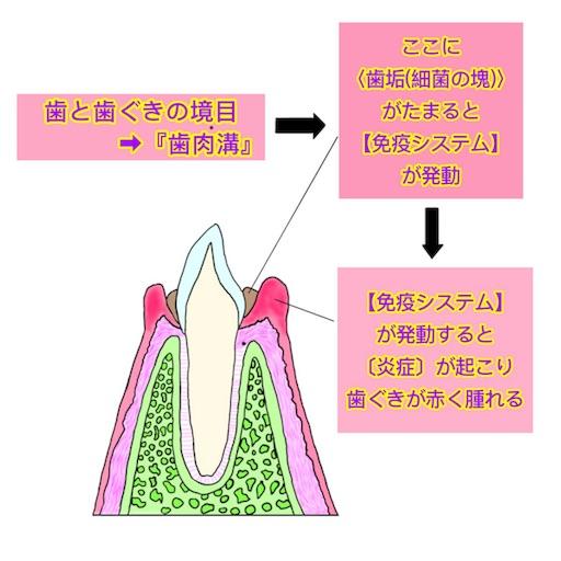 歯肉炎のメカニズム