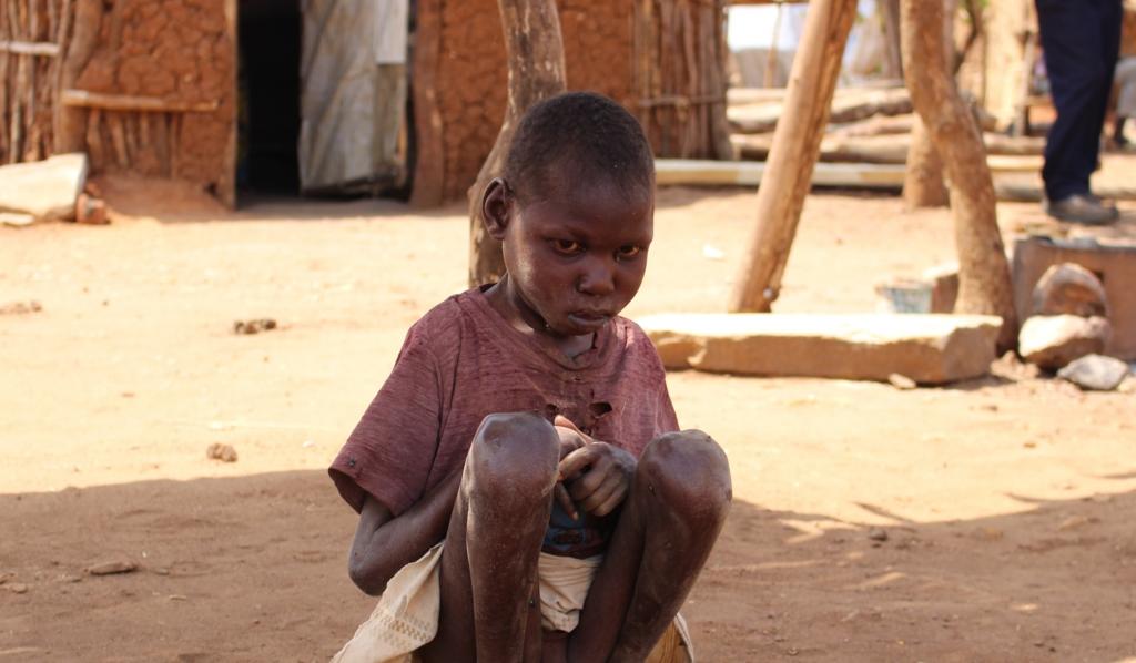絶対的貧困