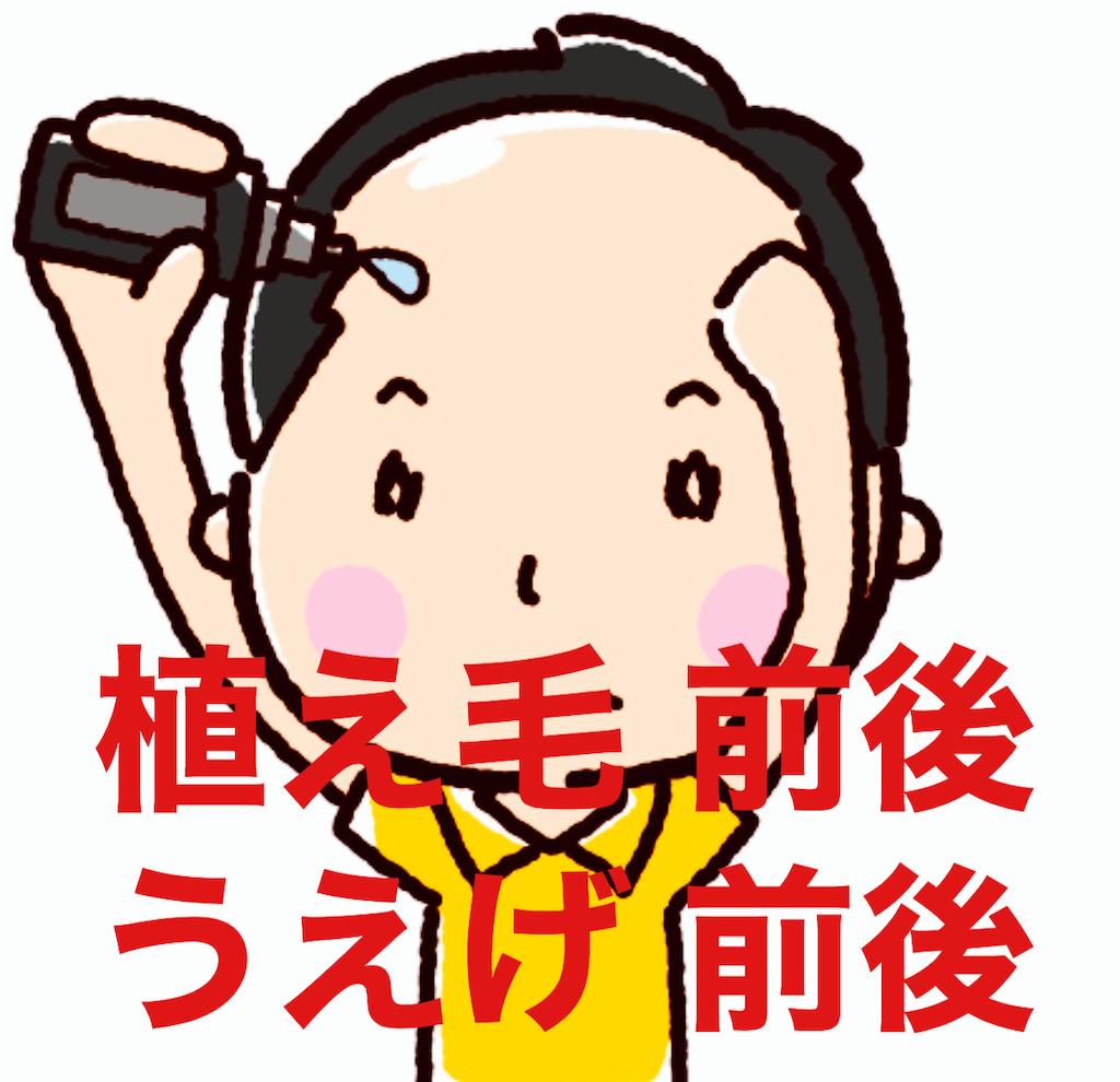 f:id:KeiIto:20200426145212p:image