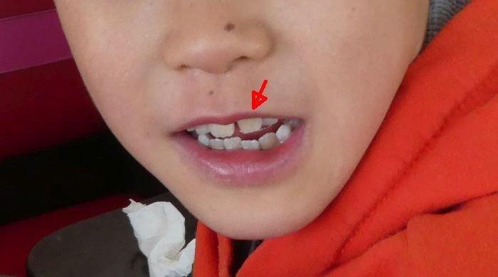 上の前歯が下の前歯の奥に引っ込みそうになっている