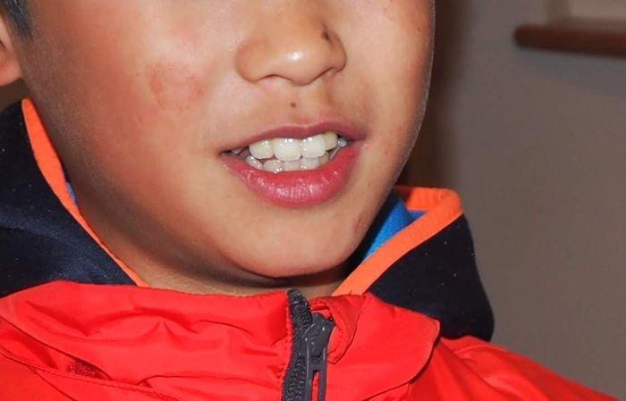 息子の前歯の歯並び