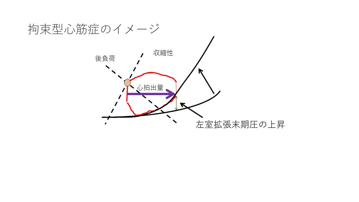 f:id:KenzyN:20190716150234p:plain