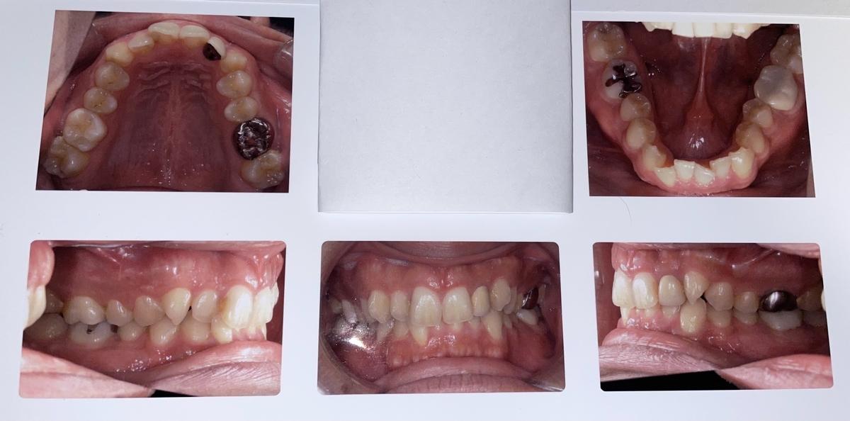 治療0日(初期状態)時点での私の歯列